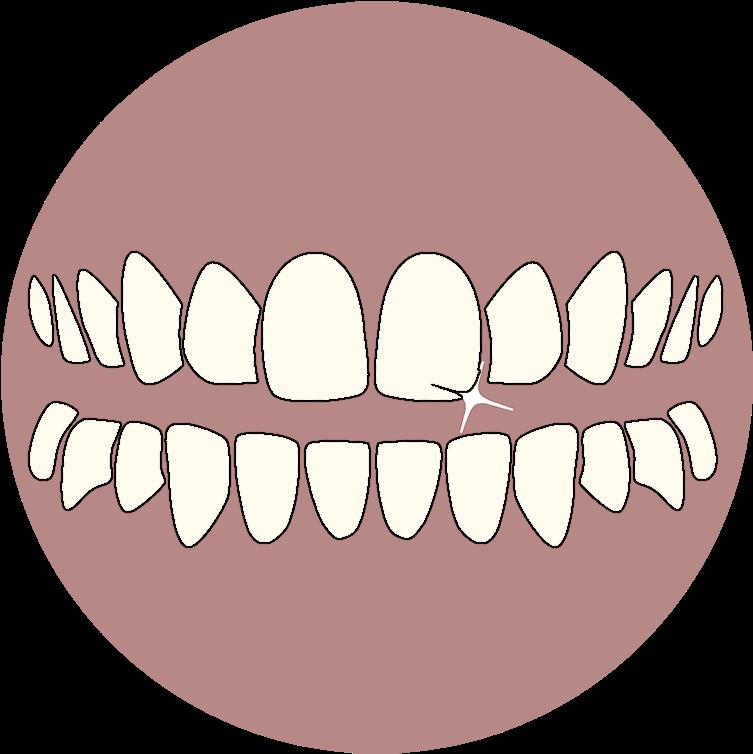 Рисунок зубов человека прошла