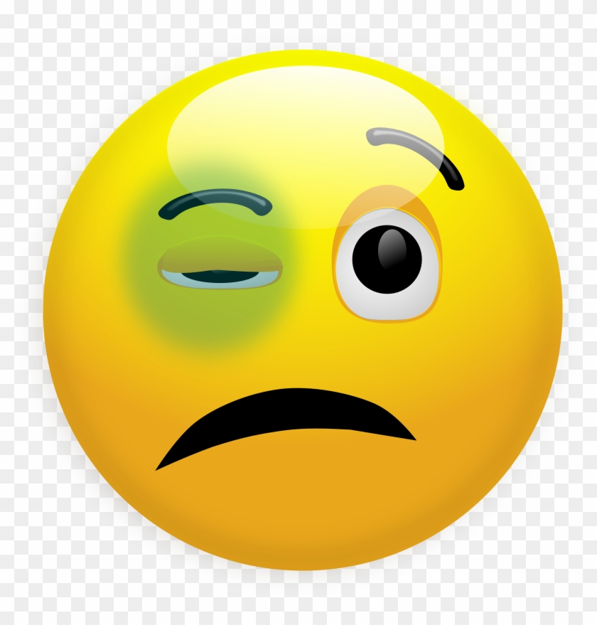 Emoji With Black Eye #13082