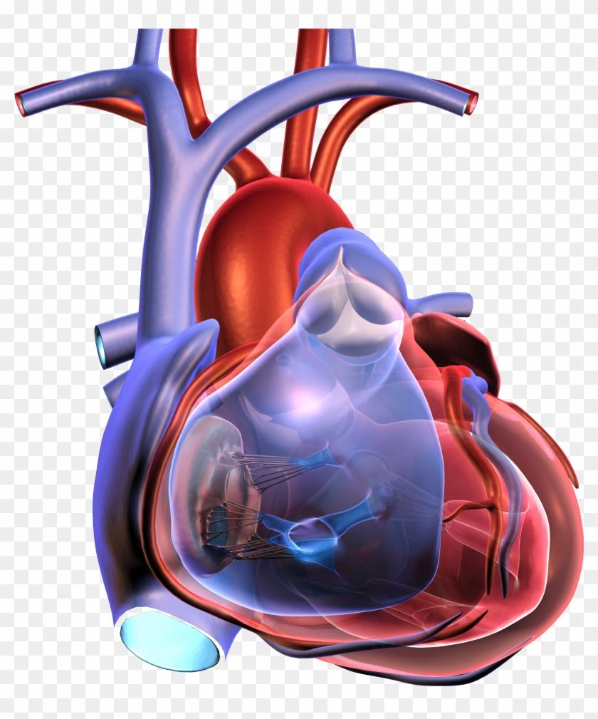 Events - Cardiac Arrest #492154
