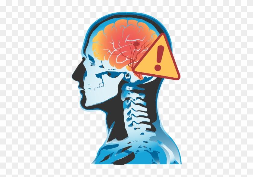 Stroke - Brain Stroke Transparent Backgrond #543550