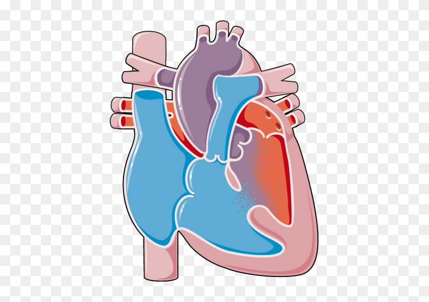 Congenital Heart Disease - Ventricular Septal Defect #100215
