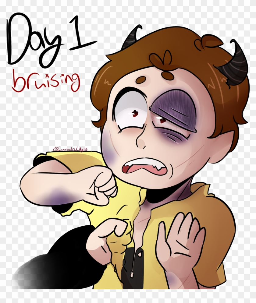 {day 1} Bruising By Lunaticlily13 - Drawing #571970