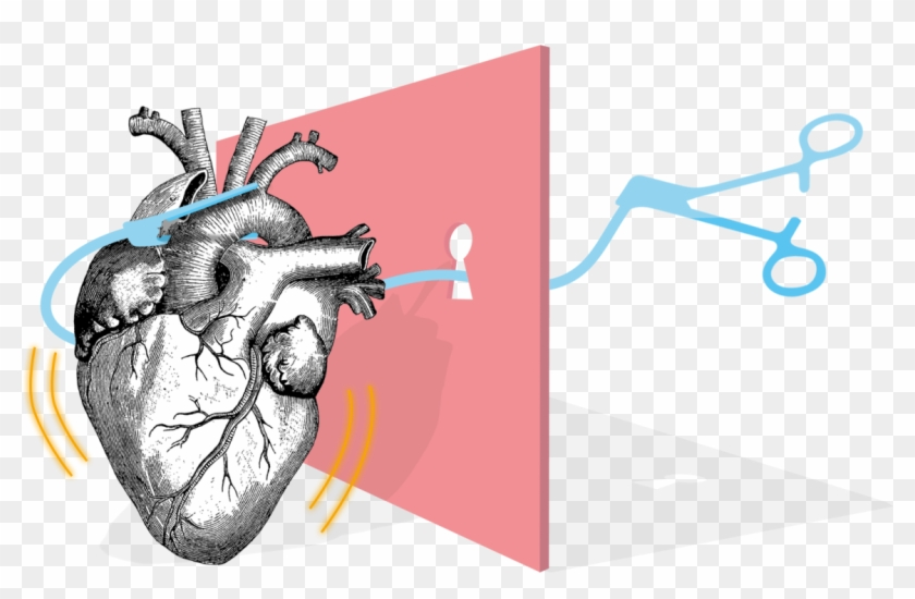 Heart Surgery - Human Heart #709191