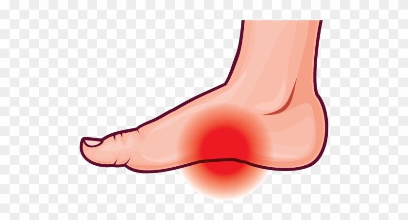 Arch Pain - Clip Art Foot Pain #216575